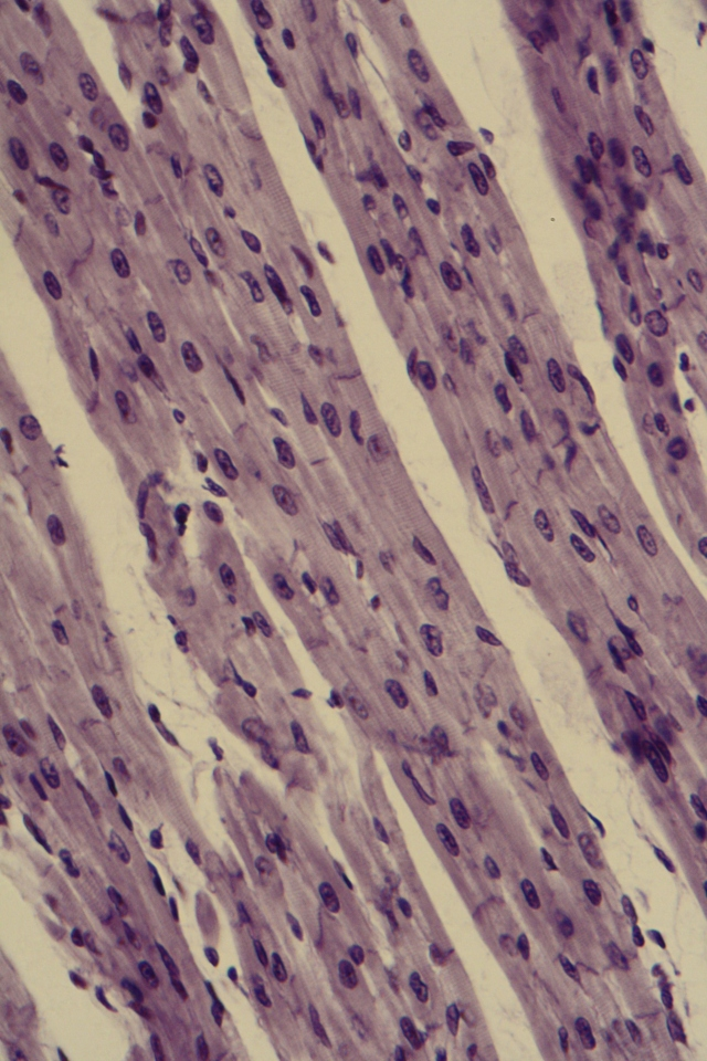 cardiac muscle with intercalated disks
