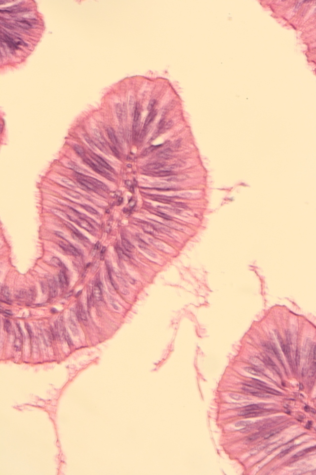 ciliated columnar epithelium