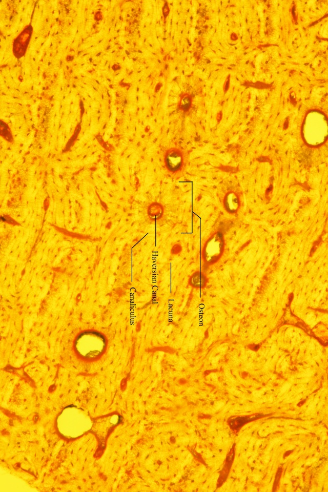compact bone with labelled structures under yellow fluorescence