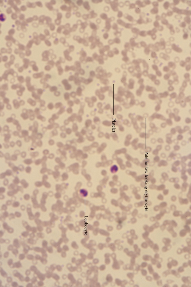 Cooleys anaemic blood (labelled)