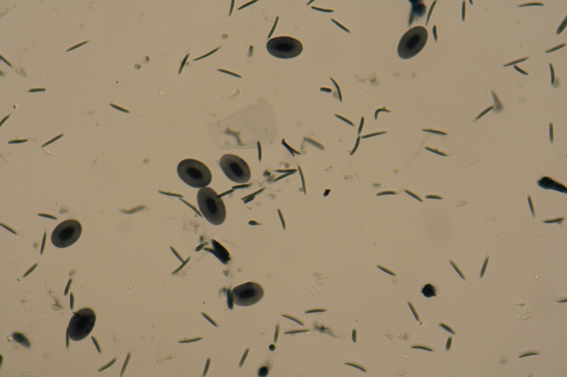 frog sperm with flagella
