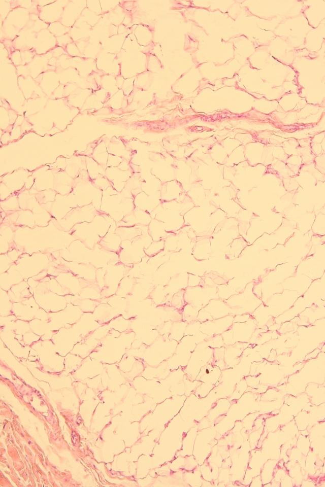 human adipose tissue
