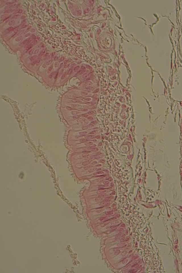 pseudostratified columnar ciliated epithelium