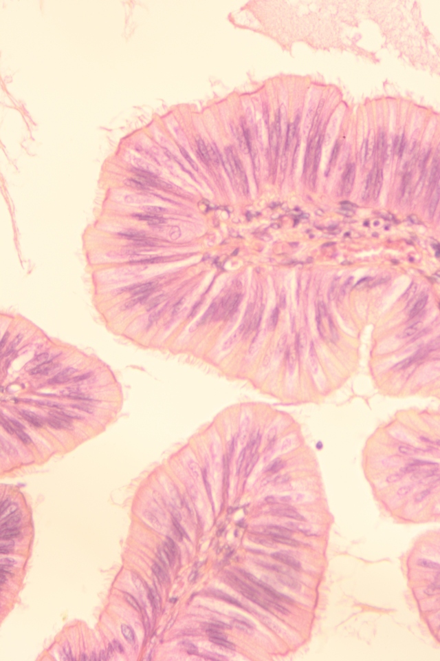 simple ciliated columnar epithelium